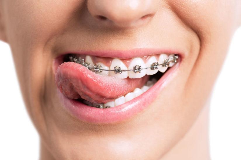 کشیدن دندان در بارداری