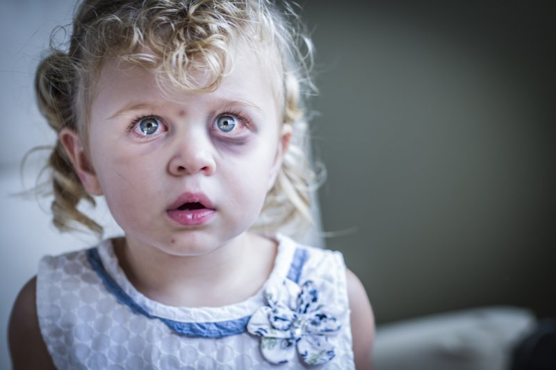photodune_9118222_sad_and_frightened_little_girl_with_bloodshot_and_bruised_eyes_l__1532100616_98028