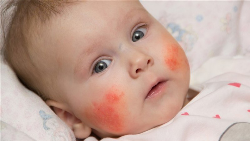 cute-eczema-baby-today-tease-171122_ec0339882cbfa4ea29301b588b435396.fit-760w